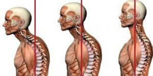 Rieducazione Posturale - Fisioterapia Dr. Mazzucchelli Parma
