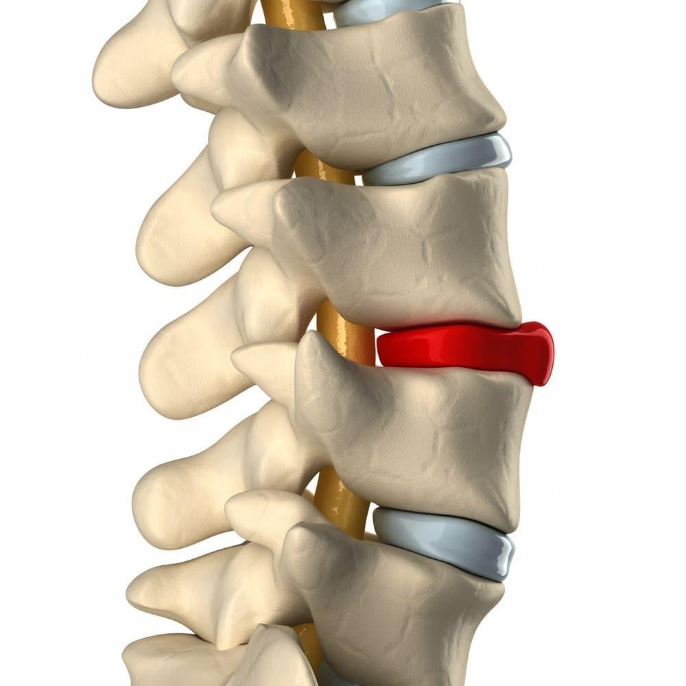 Mal di schiena e colonna vertebrale - Fisioterapia ed osteopatia Dr. Mazzucchelli