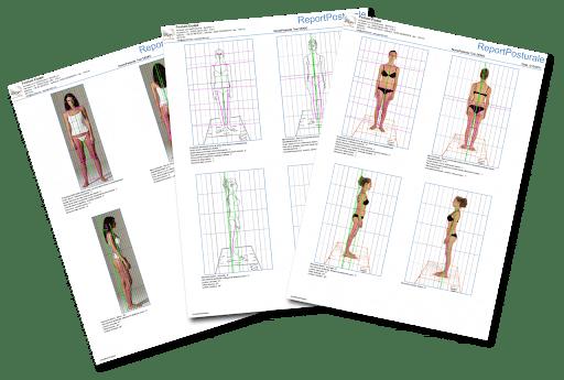 valutazione posturale e biomeccanica - Dr. Mazzucchelli Fisioterapista Parma