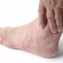 distorsione di caviglia - Dr. Mazzucchelli Luca Fisioterapista Parma